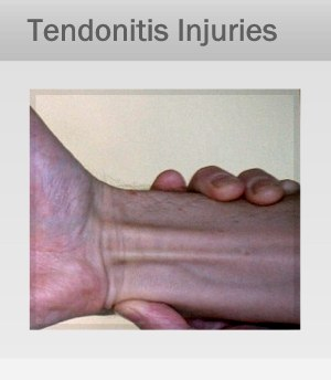 Tendonitis, Tendinosis Treatment Therapy in Marin, San Francisco