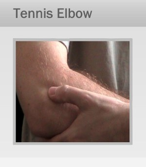 Tennis Elbow Treatment Therapy in Marin, San Francisco