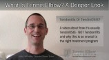 Tennis Elbow: Is It Tendonitis Or TendinOSIS?